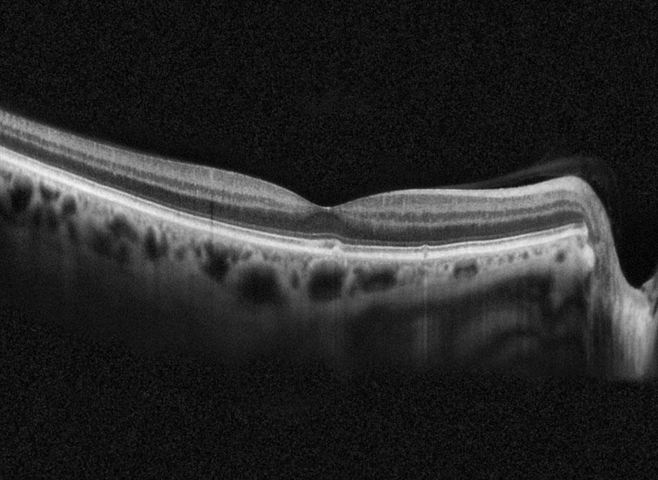 Tomografía-de-coherencia-óptica-(OCT)